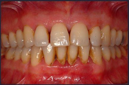 Почистить зубы от зубного камня в домашних условиях - Sport holdem