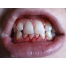 12 фактов о зубах, которые должен знать каждый.
